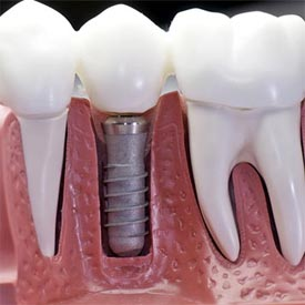 NW Calgary Dental Implants | Point McKay Dental