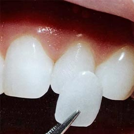 NW Calgary Porcelain Veneers | Point McKay Dental