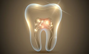 NW Calgary Root Canal Therapy | Point McKay Dental