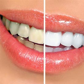 NW Calgary Teeth Whitening | Point McKay Dental